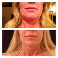 REAL results in 12 weeks! NeriumAD