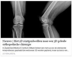 """31 juli 2015: We hebben in Sittard-Geleen met succes de allereerste knieprotheses geplaatst via een nieuwe methode! Tot voor kort moesten patiënten voor de plaatsing van een knieprothese eerst in een MRI-scanner. Door de nieuwe techniek zijn röntgenfoto's voldoende. """"Het is een voorrecht om als eerste deze technologie te kunnen gebruiken in Nederland"""", vertelt dr. Nanne Kort, onze orthopedisch chirurg in Sittard-Geleen. Lees het nieuwsbericht op onze website www.zuyderland.nl --> nieuws"""