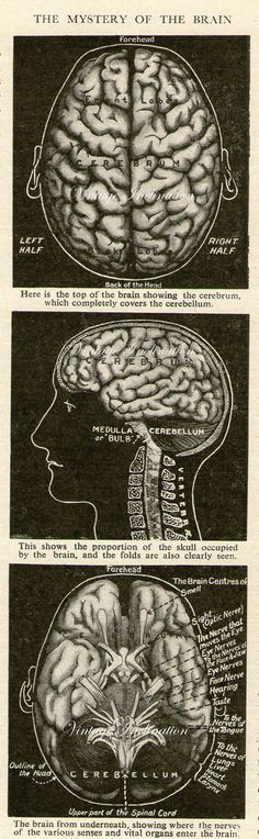 """This antique medical illustration of the human brain because, you know, """"braaaaaains."""" 