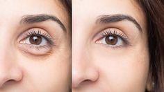 Make The Wrinkles Disappear With This Homemade 3 Ingredient Face Cream Miracle Eye Cream, Under Eye Fillers, Dark Circles Treatment, Fresh Aloe Vera, Dark Under Eye, Operation, Lighten Skin, Dermal Fillers, Fair Skin