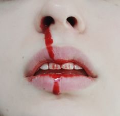 If you don't like bloody lips, swollen knucles and slashed wrists I don't see what you're doing here. Again this isn't about SI romantasizing or propaganda...♧