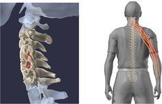 La radiculopatía consiste en un cuadro clínico de dolor irradiado y síntomas nerviosos desde las raíces nerviosas de la columna cervical hacia la extremidad superior (Cervicobraquialgia).