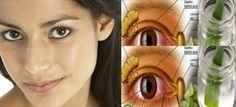 Wzrok jest niesamowicie ważny w naszym życiu. Dbanie o niego jest naturalnie proste. Zamiast się załamywać, możemy wziąć sprawy w swoje ręce! Salmon, Herbs, Education, Health, Tips, Bible, Eyes, Health Care, Herb