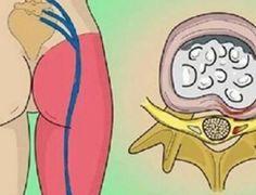 Dor no nervo ciático: este simples exercício vai aliviar a dor em poucos minutos! - Dicas Aki!