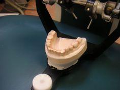 Dental cast dentistidentity.com