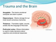 This diagram shows brain areas affected by trauma. It can be helpful for clients to gain a better understanding of how trauma impacts the brain (Pivotal Education, Brain Anatomy, Human Anatomy And Physiology, Mental And Emotional Health, Mental Health Awareness, Hippocampus Brain, Adverse Childhood Experiences, Limbic System, Brain Facts, Trauma Therapy