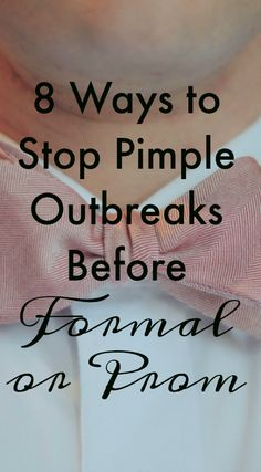 8 Ways to Stop Pimple Breakouts Before Formal or Prom #Skin #Skincare #Health #Pimples #Prom