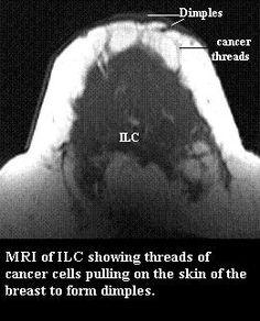 radiopaedia del cancro alla prostata