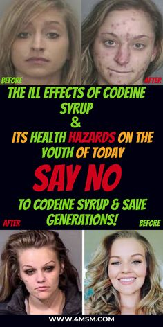 Codeine syrup, along with its meditative properties, generally contains alcohol too. Taking codeine syrup in small amounts does not cause any harm to one's health in any way whatsoever. Youth Of Today, Cough Syrup, Latest Gadgets, Change Is Good, Self Help, Alcohol, Health, Products, Rubbing Alcohol