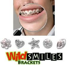 Wild Smiles Brackets! #Braces #EmbraceExpression @Destiny Cole Smiles