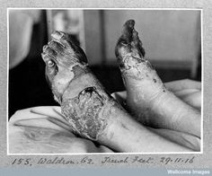 Trench foot caused by prolonged exposure to damp, unsanitary & cold conditions. #WW1centenary #LestWeForget