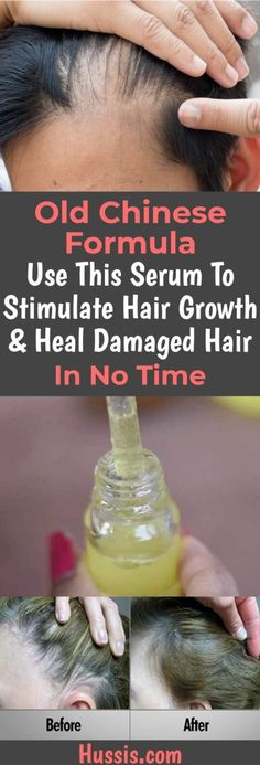 Old Chinese Formula Use This Serum To Stimulate Hair Growth & Heal Damaged Hair In No Time, . Old Chinese Formula Use This Serum To Stimulate Hair Growth & Heal Damaged Hair In No Time, Hair Growth Tips, Hair Care Tips, Hair Growth Products, Fast Hair Growth, Hair Growth For Men, Castor Oil For Hair Growth, Products For Thinning Hair, Diy Hair Growth Serum, Natural Hair Care Products