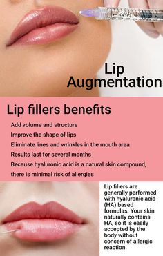 Dermal filler treatment is remarkably fast, gentle, and efficient. Find out more on lip augmentation treatment: Dermal Fillers Lips, Facial Fillers, Botox Fillers, Lip Fillers, Botox Injection Sites, Botox Injections, Filler Injection, Botox Lips, Facial Aesthetics