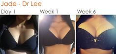 Jade is featured here at 1 day, one week and 6 weeks post op after her Breast Augmentation surgery with Dr Lee at The Cosmetic Institute.