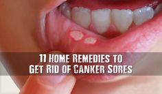 11 Home Remedies to Get Rid of Canker Sores - When you're suffering, you just want to know the treatments that will get them go away! These home remedies bring fast pain relief while allowing your canker sores to heal.