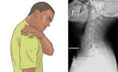 Simptomele spondilozei cervicale. Iata ce remedii naturale ai la indemana - Viata si Sanatate