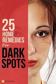 Dark spots are also known as age spots or black spots. They are discolored patches of skin that can appear on your face, shoulders, arms, or back and can be in shades of red, brown, or grey. These spots appear due to the oversecretion of melanin – the pigment responsible for the color of our skin. 25 Home Remedies For Dark Spots That Are Guaranteed To Work