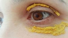 There are wide range of natural remedies for treating skin issues and improving the skin quality. One of the most powerful and natural remedies which can be used for the skin is turmeric. Turmeric is an amazing spice which has … Natural Herbs, Natural Health, Dark Circle Remedies, Eye Sight Improvement, Piel Natural, Vision Eye, Les Rides, Skin Tag, Tips Belleza