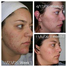 clear skin natural acne cure