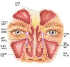 Herbal Remedies for Sinusitis on Search Home Remedies