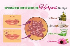 Seeking for home remedies for herpes on lips? Here are top 20 natural solutions for treating this problem. Natural Remedies For Herpes, Herpes Remedies, Health Remedies, Getting Rid Of Freckles, Herpes Simplex Virus, Anti Inflammatory Diet, Cold Sore, Tips, Knives