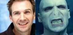 #transformationthursday Very rarely do we get requests to make a smile ugly, but I suppose we'd have a very different Voldemort if they left his teeth untouched. We custom-make dental prosthesis to restore people's smiles, not destroy them, lol. Apparently, the actor was in makeup for about 6 hours a day for the films and he couldn't eat with the fake teeth. x.x Psst: Anyone else excited about the new Harry Potter book coming out on Sunday? #dental #dentalhygiene #dentalcare 