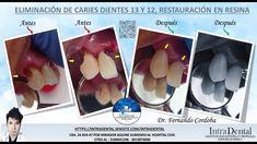 White Out, Dental, Teeth, Dentist Clinic, Tooth, Dental Health