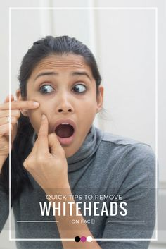 Time to tackle whiteheads on face the natural way with these kickass tips and tricks!