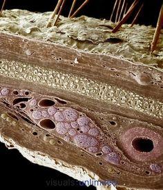 Cross section of human skin. (SEM)