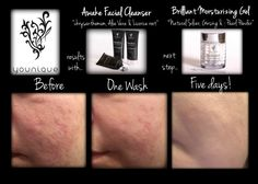 Younique Skin Care. Awake Face Cleanser & Brilliant Moisturizer the two best things you will ever buy. Gluten Free, Cruelty Free and Natural Based. www.dazzlemebyjami.com