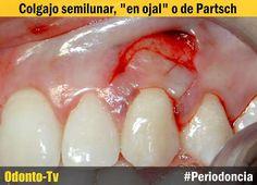 PERIODONCIA: Colgajo Semilunar - Cirugía Plástica Periodontal | Odonto-Tv