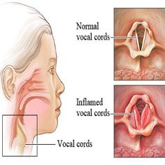 Effective Natural Remedies For Laryngitis