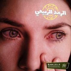 الرمد الربيعي هو مرض حساسية وإلتهاب ملتحمة العين وسمي بالرمد الربيعي نسبة إلى فصل الربيع ويحدث عندما تلامس حبوب اللقاح أو الأتربة ومسببات الح Nose Ring Nose