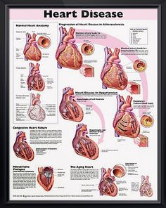 Heart Disease anatomy poster congestive heart failure, mitral valve prolapse and the effects of an aging heart are depicted. Cardiology chart for doctors and nurses.