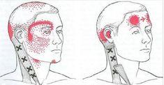 Alivie sua enxaqueca ou dor de cabeça rapidamente com estes 8 remédios caseiros