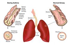 Asthma Health Tips * Check this out by going to the link at the image.
