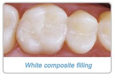 Tooth Fillings Manchester MD
