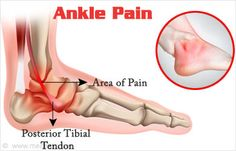 Ankle Pain – Symptom Evaluation