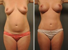 #TummyTuck, #BreastAugmentation with vertical lift #mastopexy and liposuction to streamline.  Beautiful!