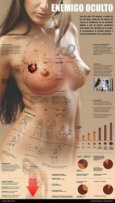 Dependant breast cancer hormone