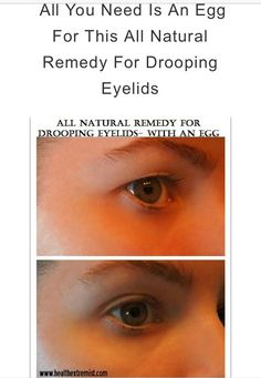 Natural Remedy for Drooping Eyelids,Sagging eyelids or hooded eyes