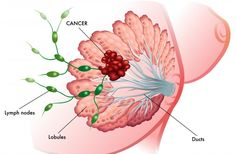Dr. Hamer's research demonstrates there are two basic types of breast cancer, glandular (lobular) and intraductal. The biological conflict associated ...