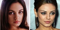 that 70s show celeb mila kunis plastic surgery before after nose job, celebrity nosejob