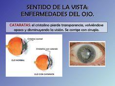 enfermedades-rganos-de-los-sentidos-3-728.jpg (728×546)