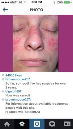 Does Proactive Help Rosacea 105101 - Rosacea. You have nothing to lose! Visit Site Now.