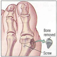 Bunion surgery is painful is because your toe bones often must be broken, shaved down and then repaired with an inserted metal pin.  Ouch!
