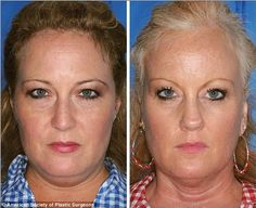 We all know smoking is bad for our health but these pictures PROVE it's also bad for your looks! Compare the twin that smokes with the one that doesn't if you don't believe us - http://uptotheminutenews.net/2013/10/30/breaking-news/we-all-know-smoking-is-bad-for-our-health-but-these-pictures-prove-its-also-bad-for-your-looks-compare-the-twin-that-smokes-with-the-one-that-doesnt-if-you-dont-believe-us/