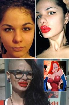 The Russian woman who had over 100 lip injections. She was so pretty to start with. Why mess with a good thing?