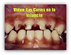 Video: Las Caries en la Infancia | OdontoFarma