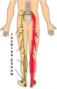 Ischias Behandeling: Informatie  Soorten Behandelingen